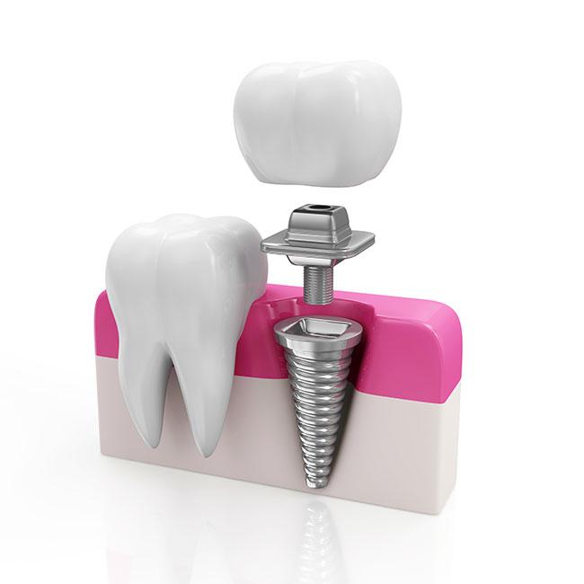 Implantes dentales Vitoria