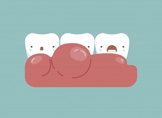Gingivitis around the teeth ,dental concept