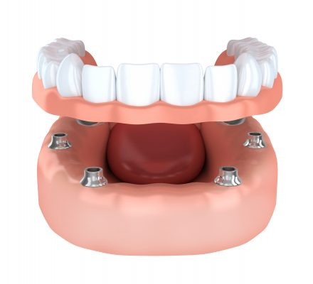 Prótesis sobre implantes