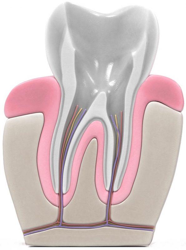 Qué es una endodoncia